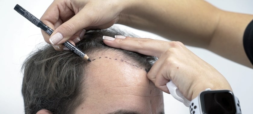 MCAN Health Hair Transplantation Bbefore