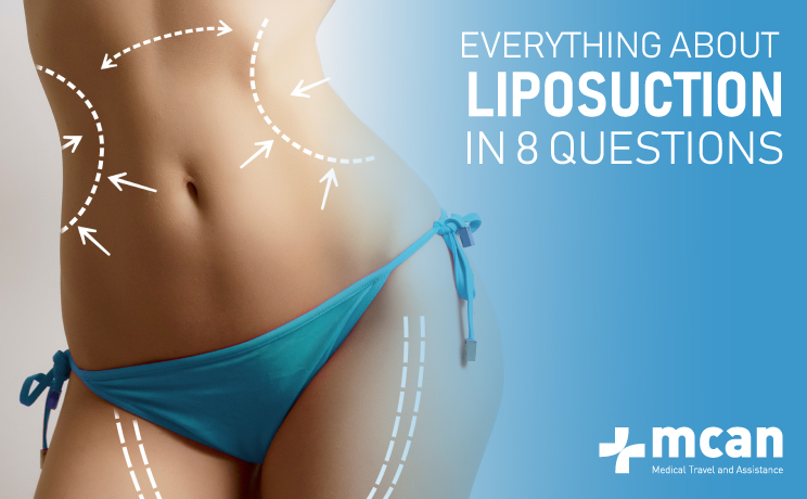 About Liposuction In 8 Questions