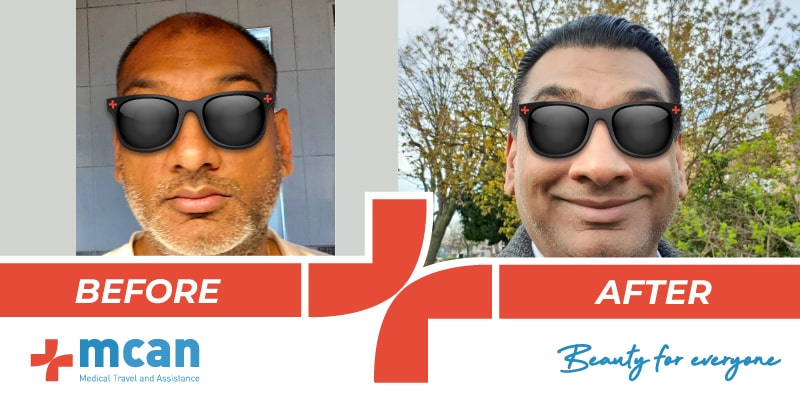 hair-transplant-before-after-10-04-19-1-min