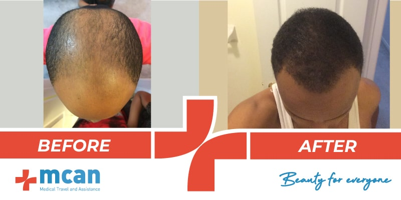 hair-transplant-before-after-10-04-19-2-min