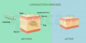 how does liposuction work