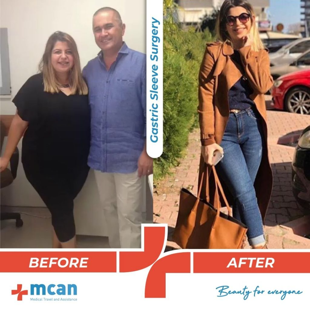 bariatric-surgery-before-and-after-photo-01