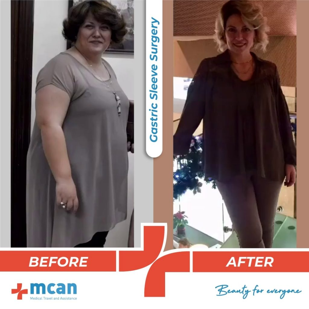 bariatric-surgery-before-and-after-photo-02