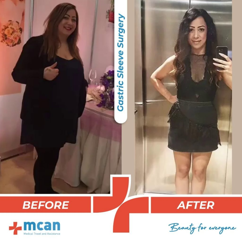 bariatric-surgery-before-and-after-photo-04