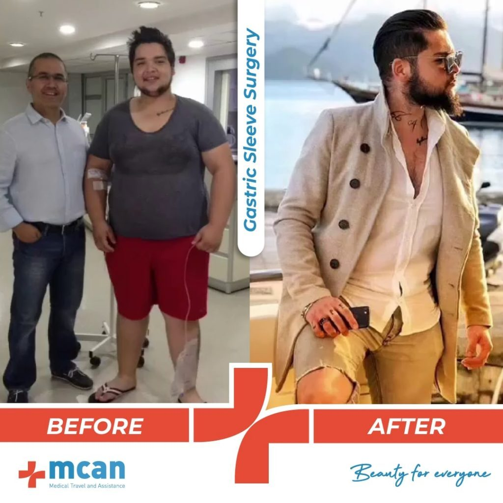 bariatric-surgery-before-and-after-photo-05
