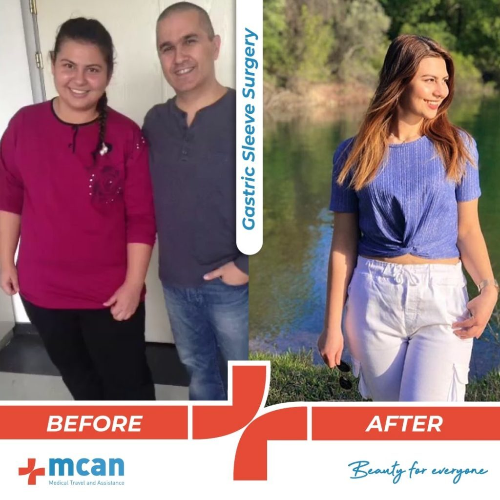 bariatric-surgery-before-and-after-photo-06