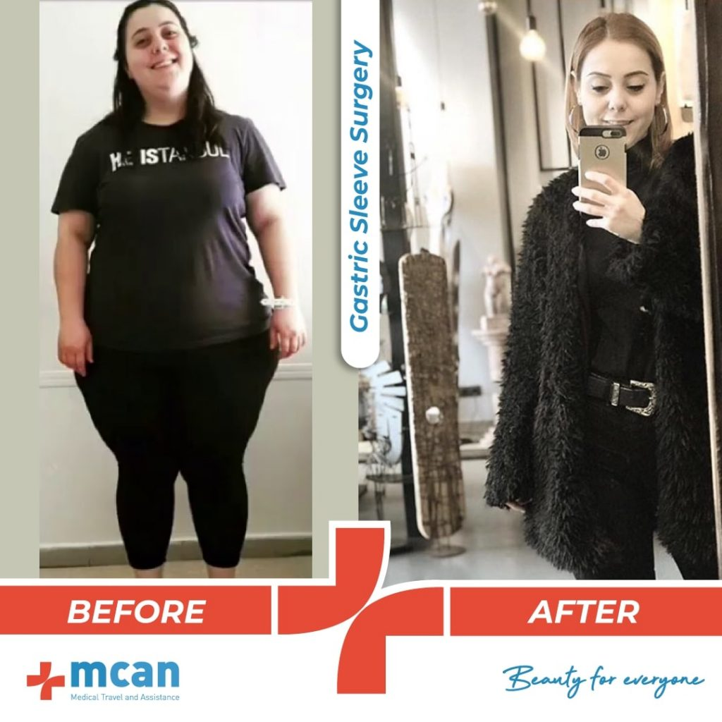 bariatric-surgery-before-and-after-photo-07