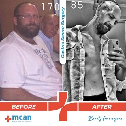 bariatric-surgery-before-and-after-photo-08