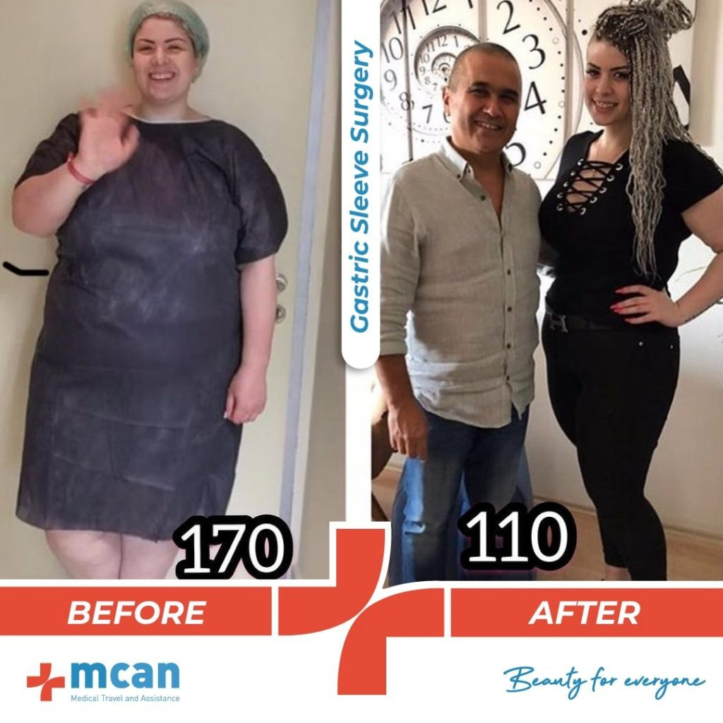 bariatric-surgery-before-and-after-photo-09