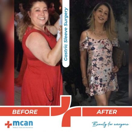 bariatric-surgery-before-and-after-photo-11