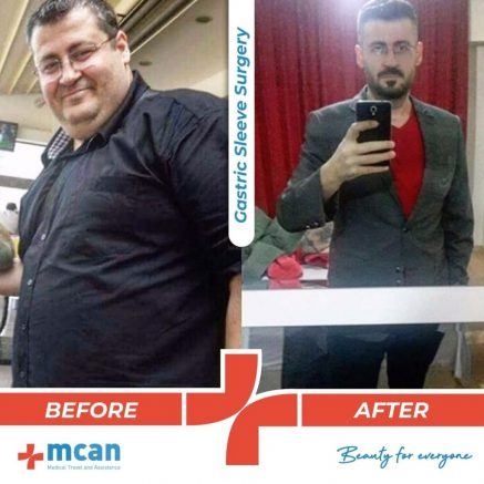 bariatric-surgery-before-and-after-photo-12