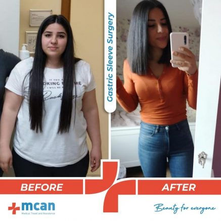 bariatric-surgery-before-and-after-photo-13