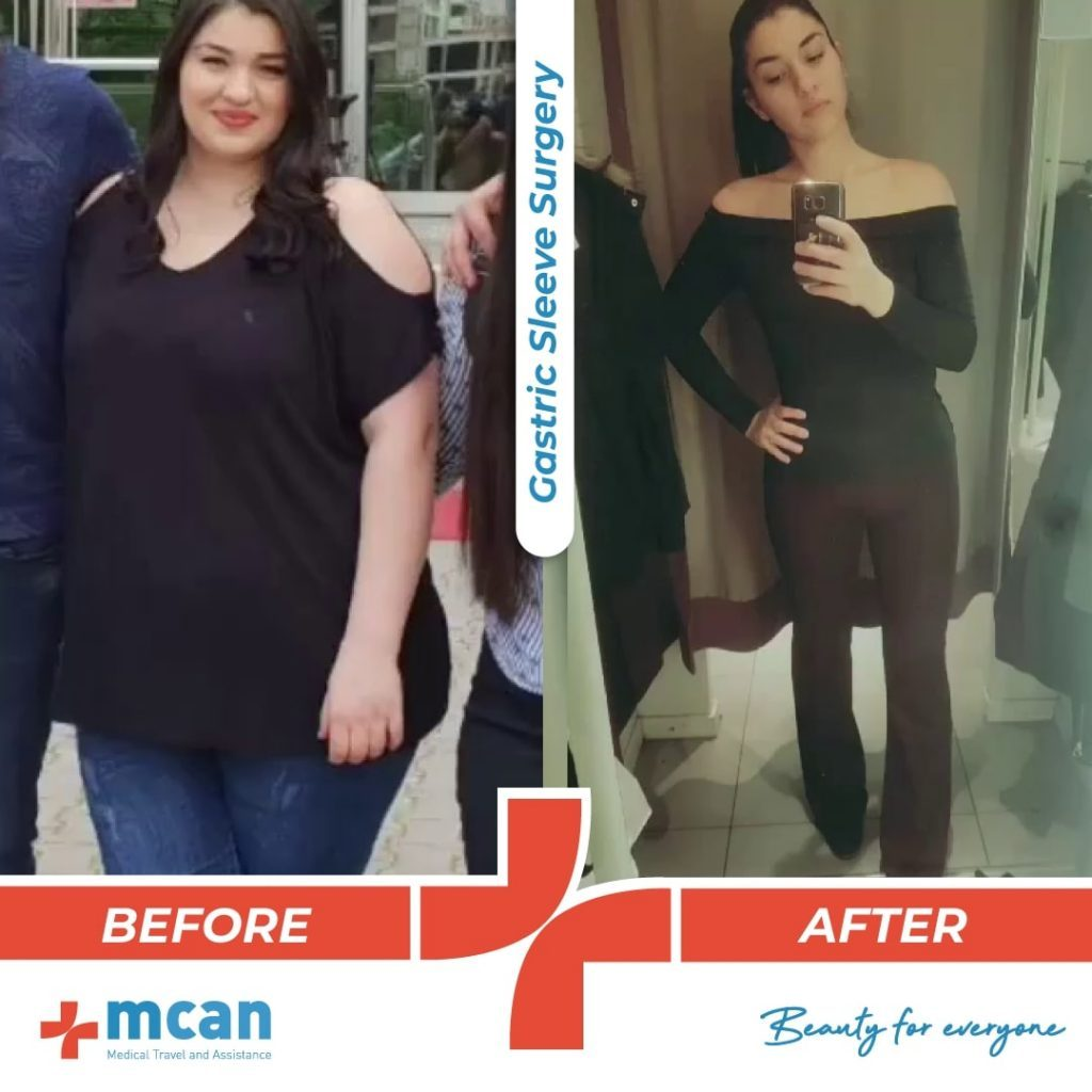 bariatric-surgery-before-and-after-photo-15