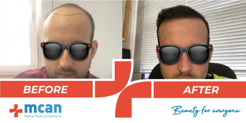 hair-transplant-turkey-1-before-after-20-05-19