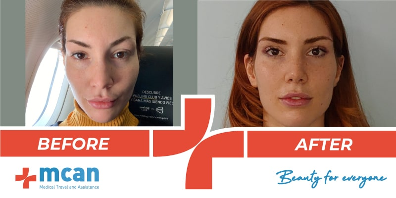 plastic-surgery-turkey-2-before-after-20-05-19