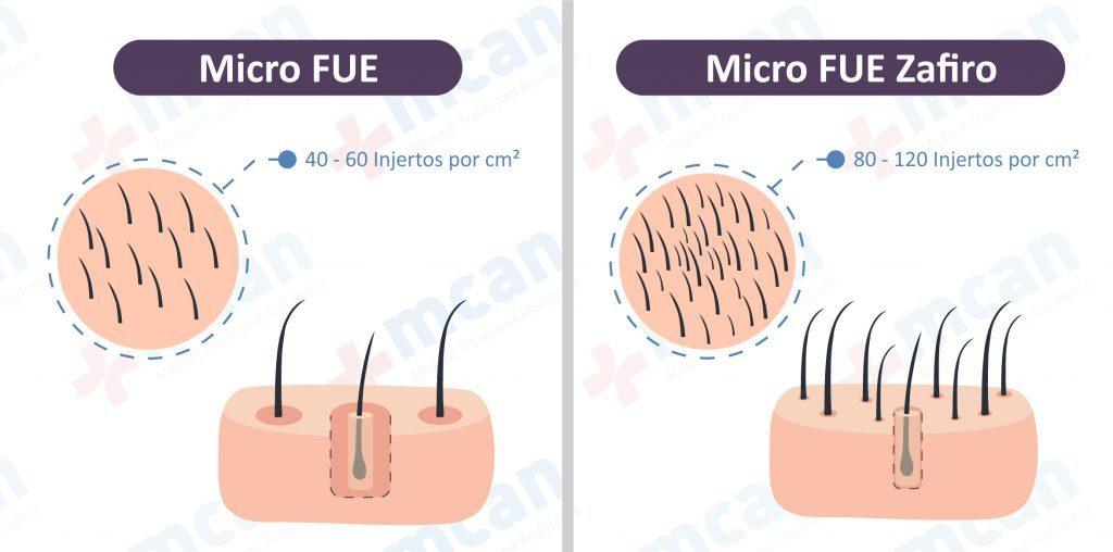 Trasplante Capilar MicroFUE Zafiro Turquia