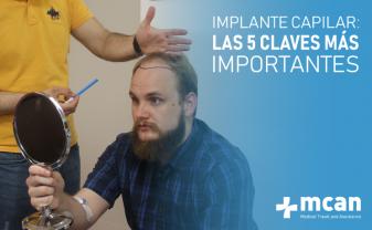 Implante capilar en Estambul