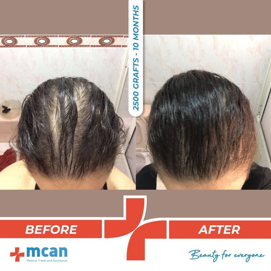 2500-grafts-hair-transplantation-18