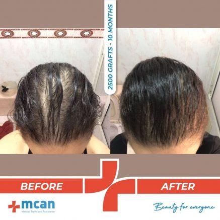 2500-grafts-hair-transplantation-18