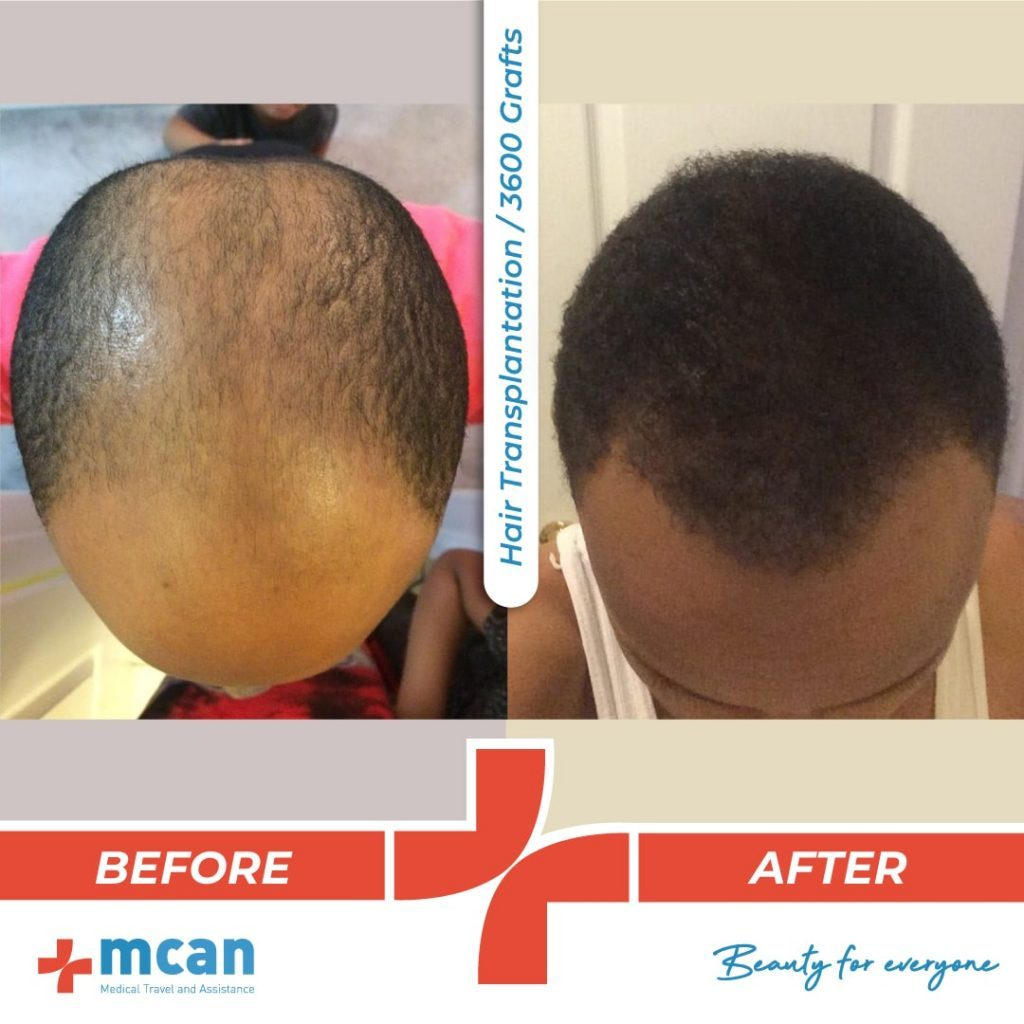 3000-grafts-hair-transplantation-29