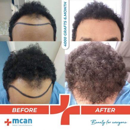 4000-grafts-hair-transplantation-13