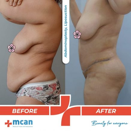 abdominoplasty-liposuction-12