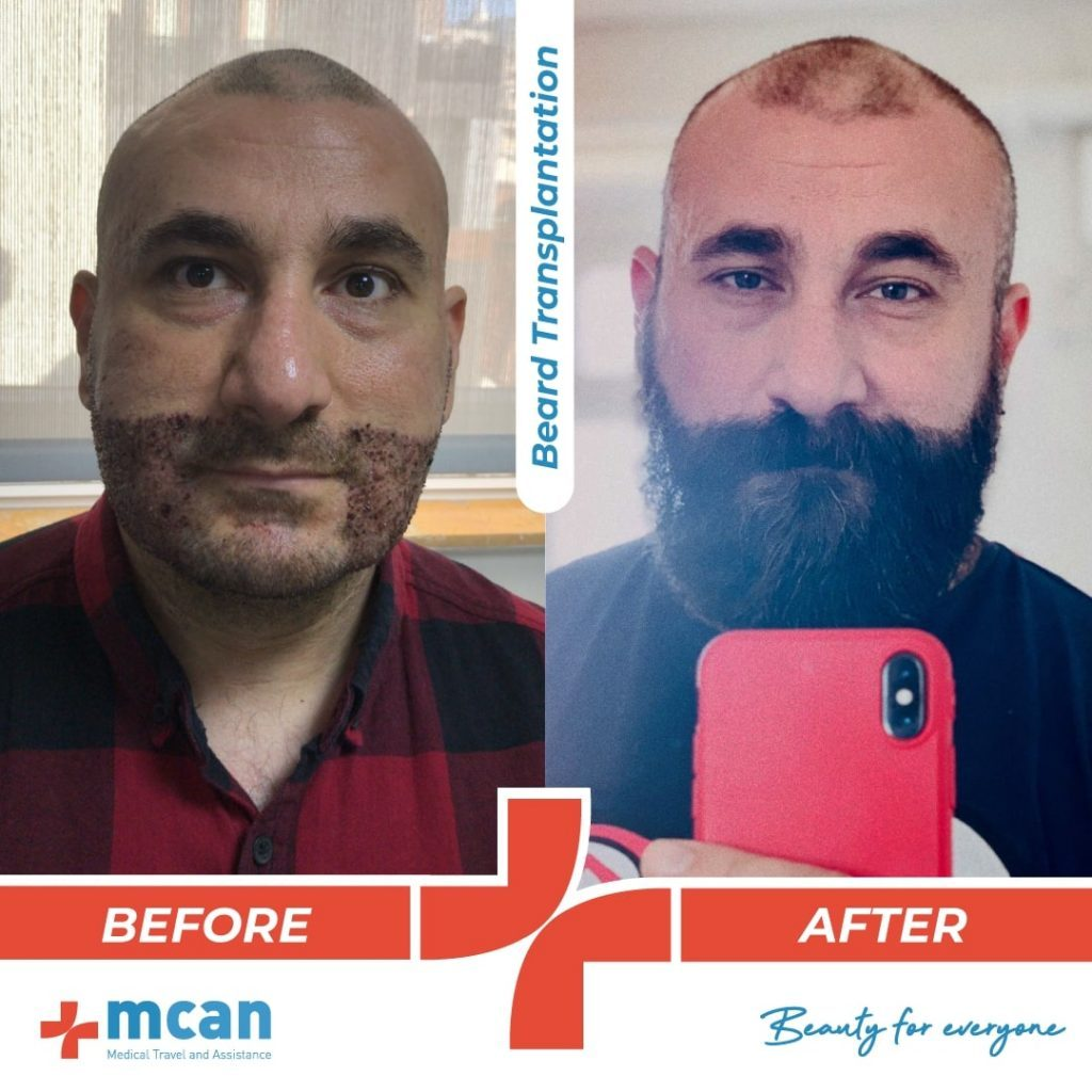 beard-hair-transplantation-10