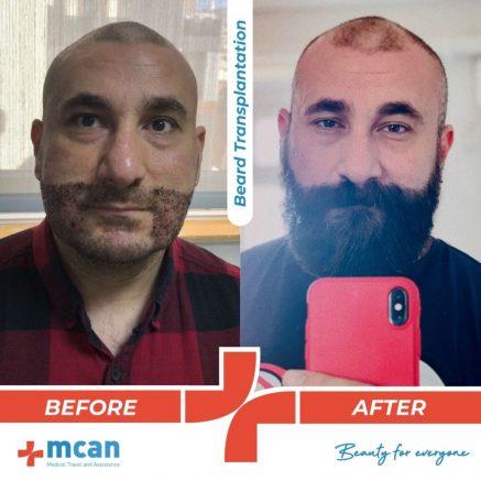 beard-hair-transplantation-10