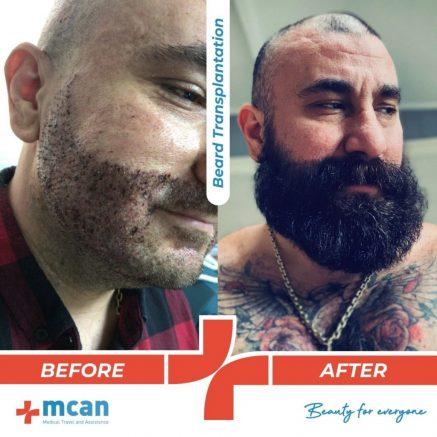 beard-transplantation-03