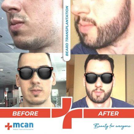 beard-transplantation-08