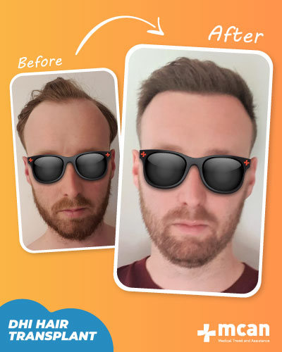 Hair Transplant Before After Turkey