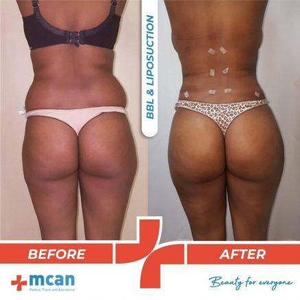 brazilian-butt-lift-liposuction-44