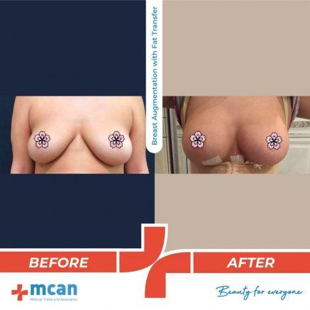 breast-augmentation-fat-transfer-23