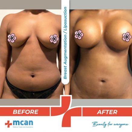 breast-augmentation-liposuction-08