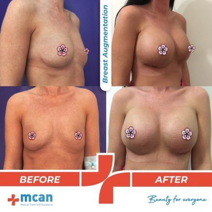 breast-augmentation-surgery-02