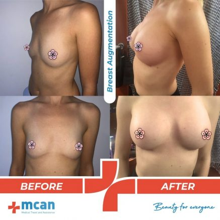 breast-augmentation-surgery-03