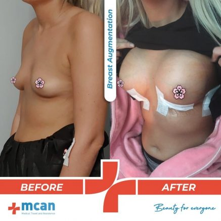 breast-augmentation-surgery-09