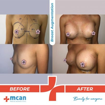 breast-augmentation-surgery-11