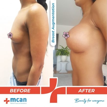 breast-augmentation-surgery-13