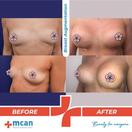 breast-augmentation-surgery-14