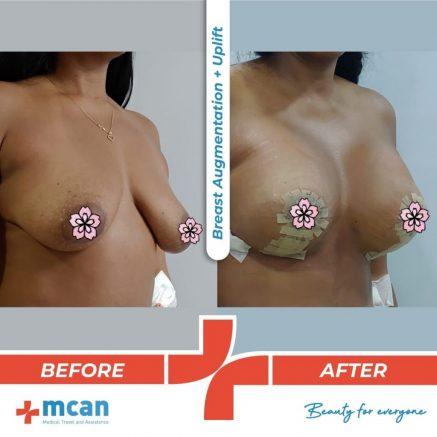 breast-augmentation-uplift-18