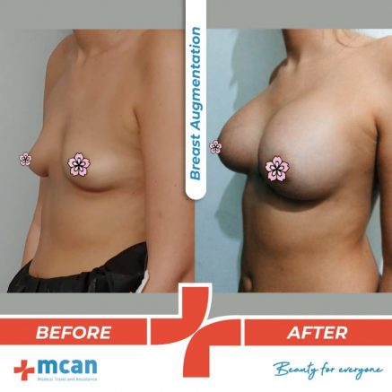 breast-augmentation-uplift-20