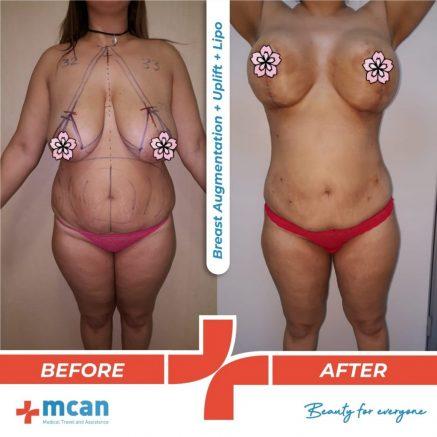 breast-augmentation-uplift-liposuction-10