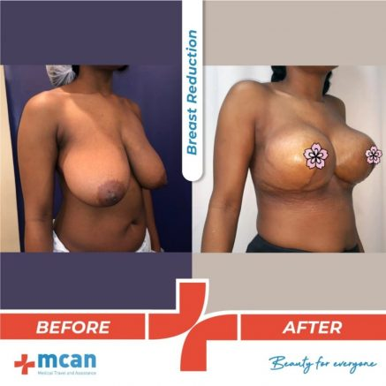 breast-reduction-surgery-19