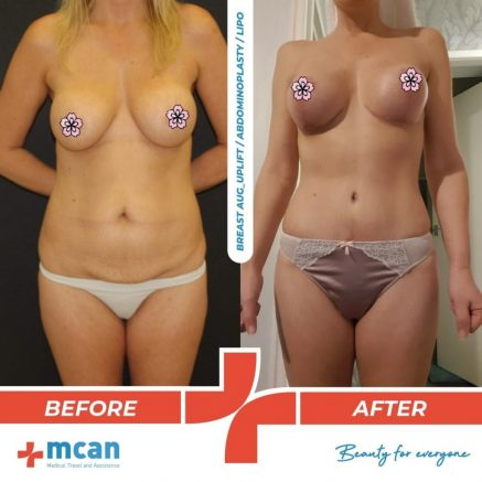 breast-uplift-liposuction-31