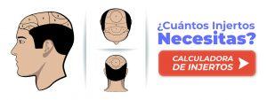 Calculadora de injertos capilares