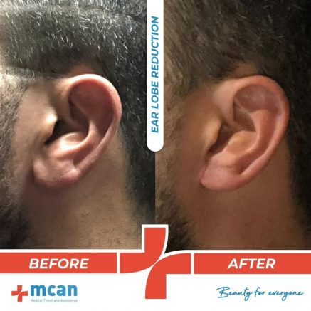ear-lobe-reduction-13