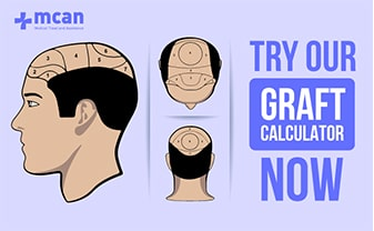 graft-calculator-for-hair-transplant-turkey-min