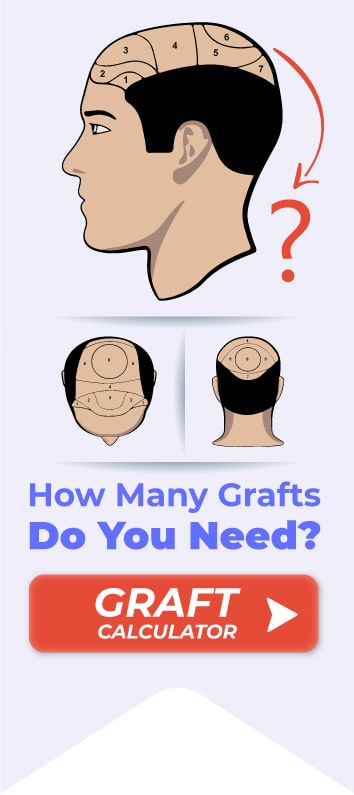 hair-graft-calculator-min