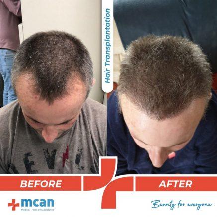 hair-transplantation-05